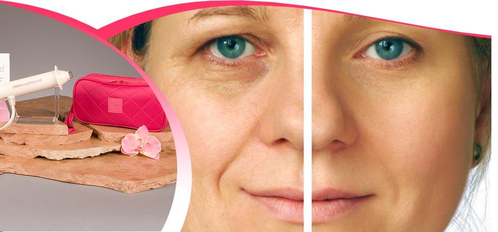 Výsledok vyhľadávania obrázkov pre dopyt derma wand